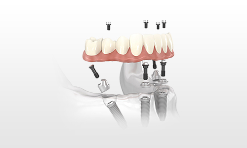 All-on-4, teeth in a day, all on four - enquire today about our same day teeth service in Scotland