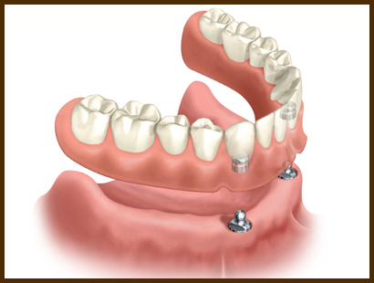 Implant over-denture
