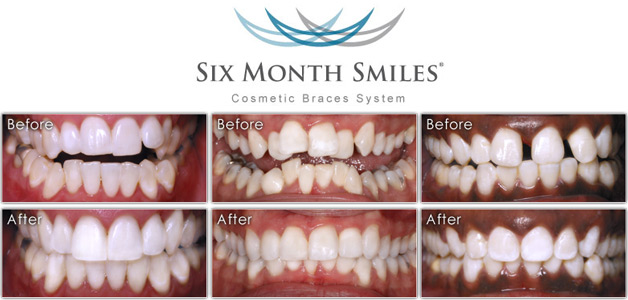 six month smiles braces- before&after