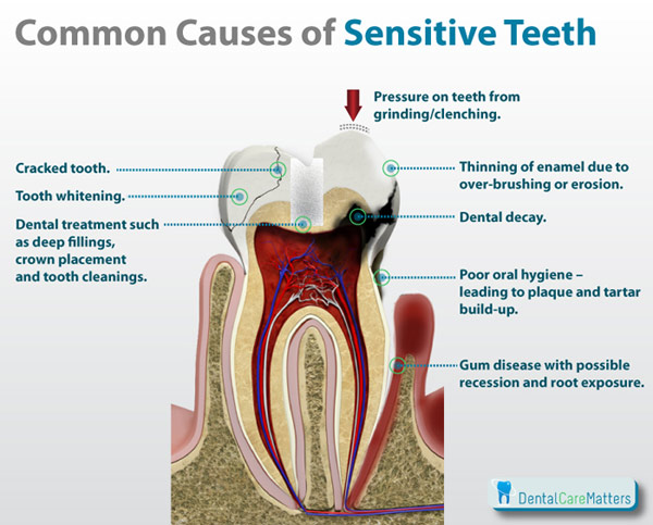 Sensitive Teeth Your Perfect Smile