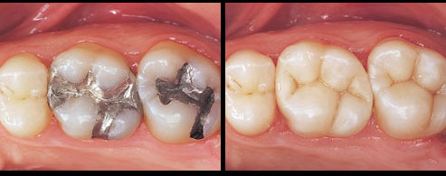 amalgam v tooth_colored_fillings