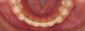 orthodontic fixed retainer Inverness